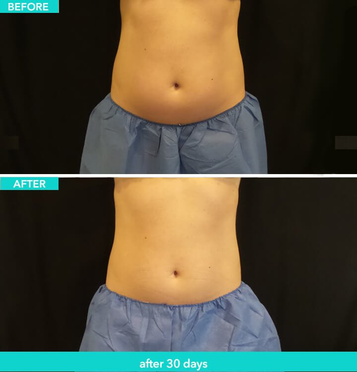 Coolsculpting Patient: Before and After