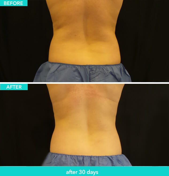 Coolsculpting on the Back: Before and After