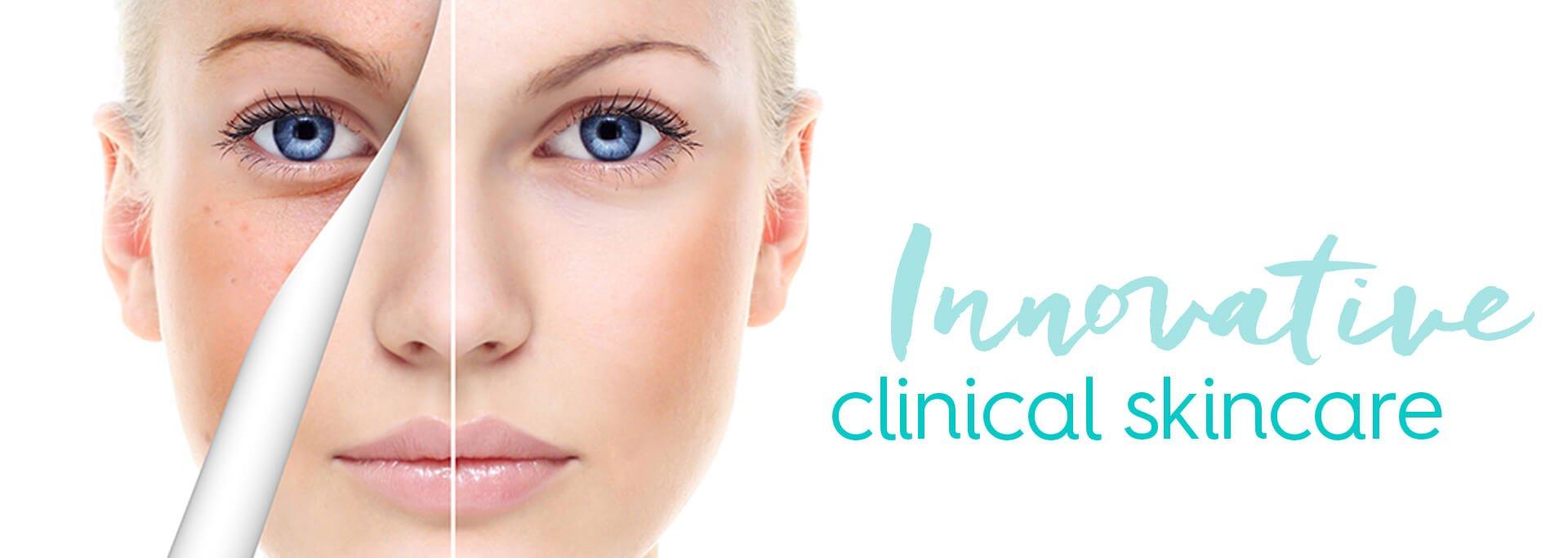 Chemical Peels in Miami: Innovative Skincare