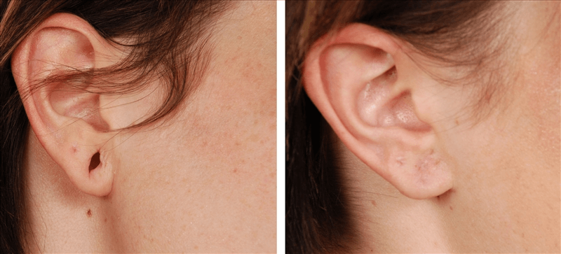 Earlobe Repair Surgery Cost In Miami Arviv Medical Aesthetics