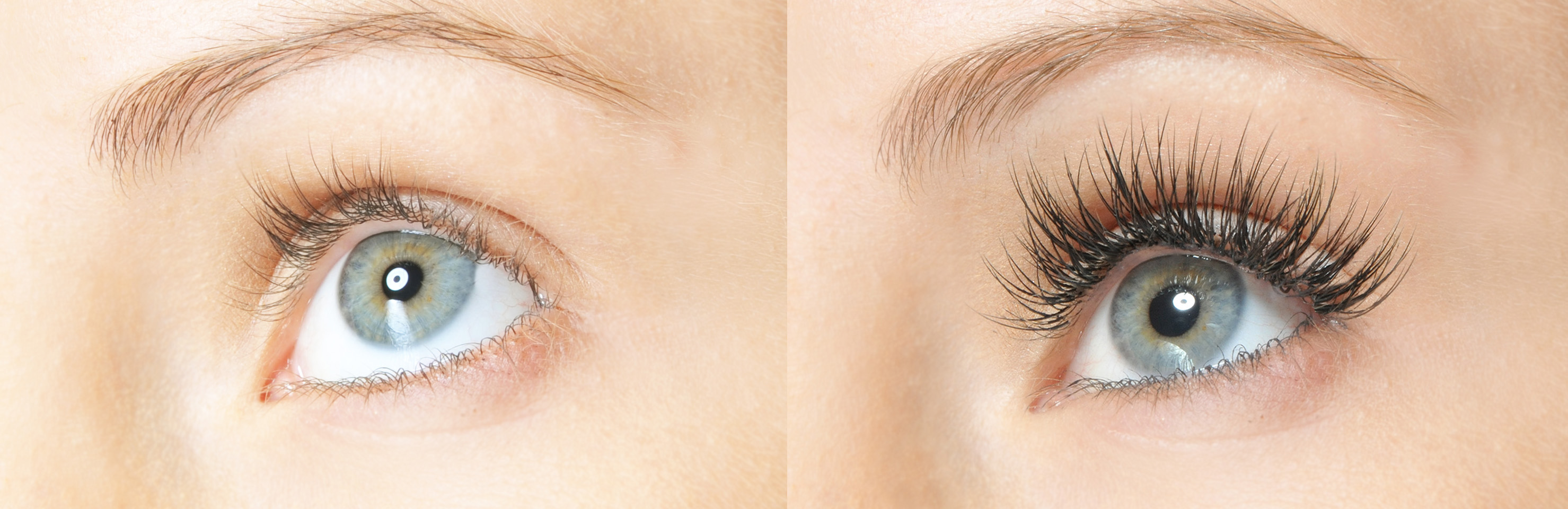 Eyelash Extensions | Arviv Medical Aesthetics