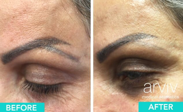 Miami Permanent Makeup Removal | Arviv Medical Aesthetics