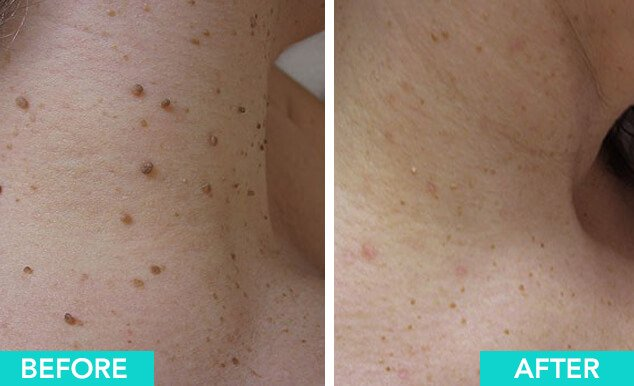 Skin Tag Wart And Mole Removal And Excision In Tampa Arviv
