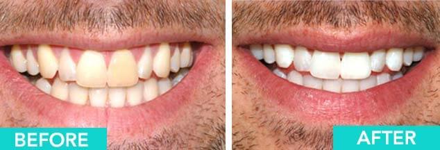 zoom-teeth