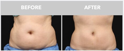 coolsculpting5