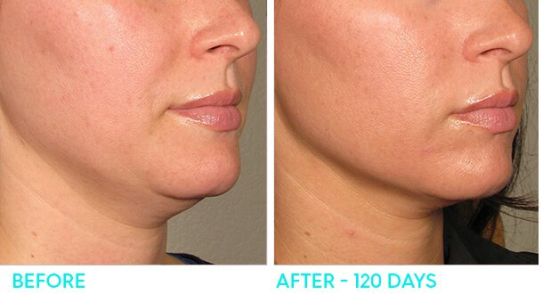 ultherapy-beforeandafter