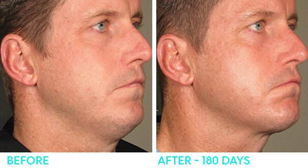 ultherapy-beforeandafter2