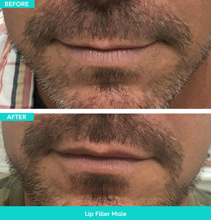 lip filler male