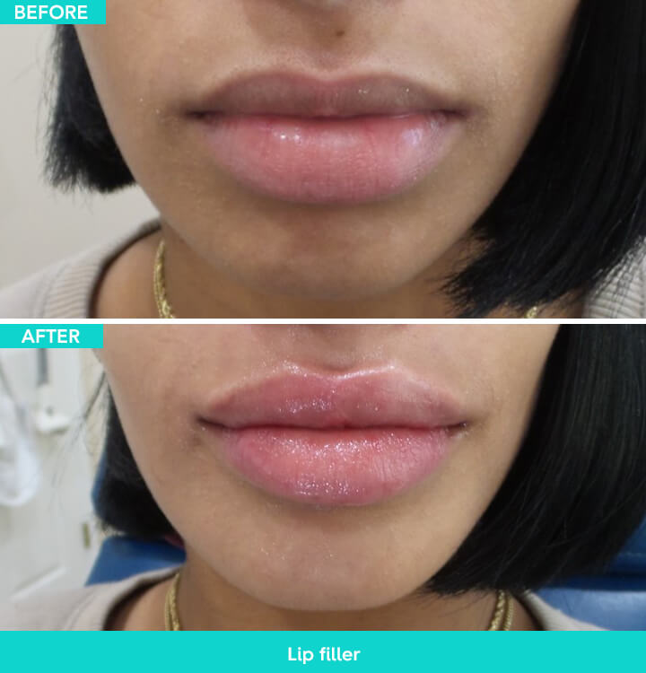 Lyft In Miami >> Miami Dermal Fillers & Injectables | Prices & Info | Arviv Medical Aesthetics