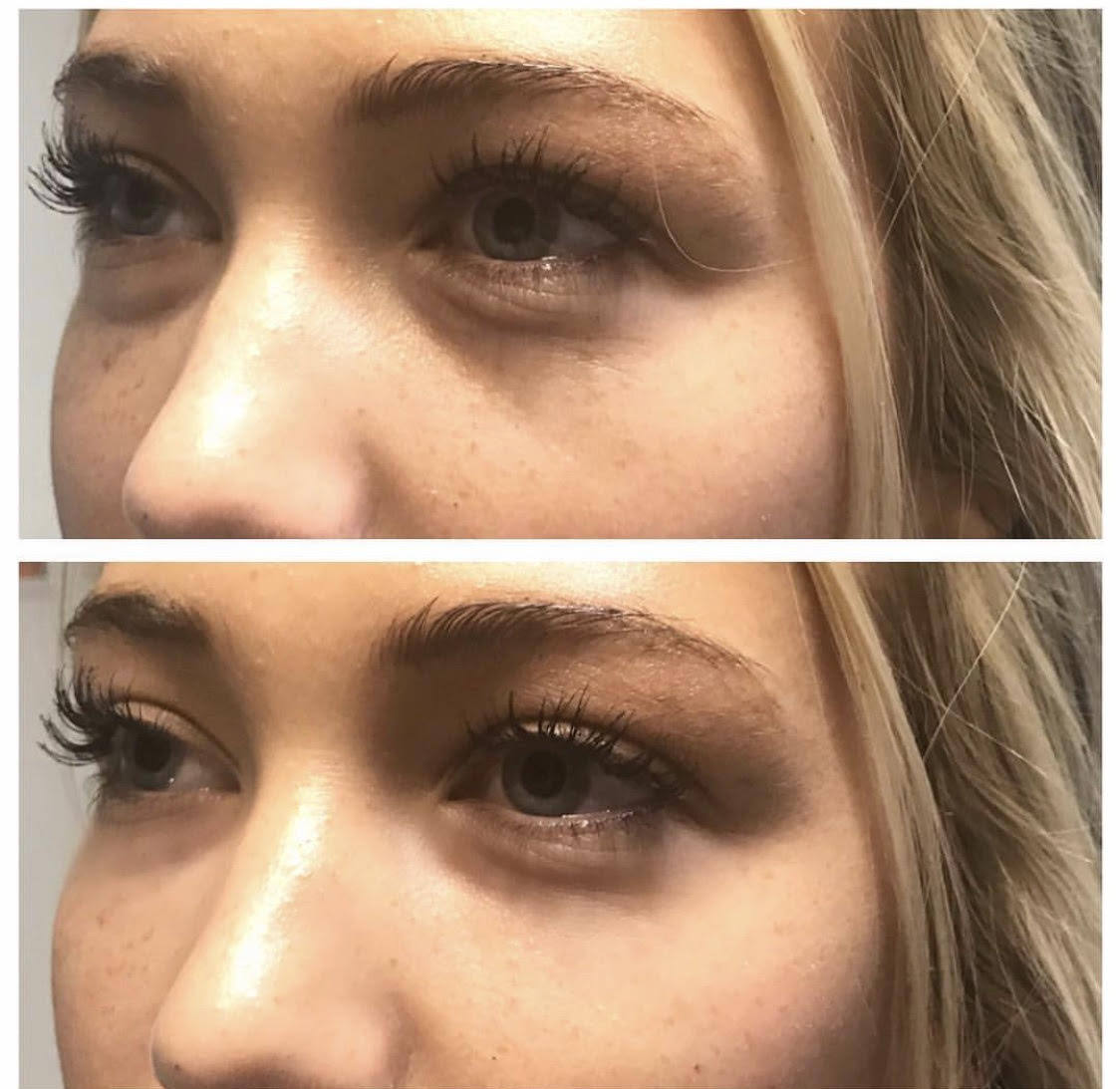 Under Eye Fillers Before 2