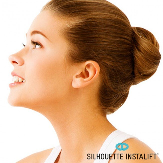 Silhouette Instalift: Non-Surgical FaceLift Tampa | Arviv