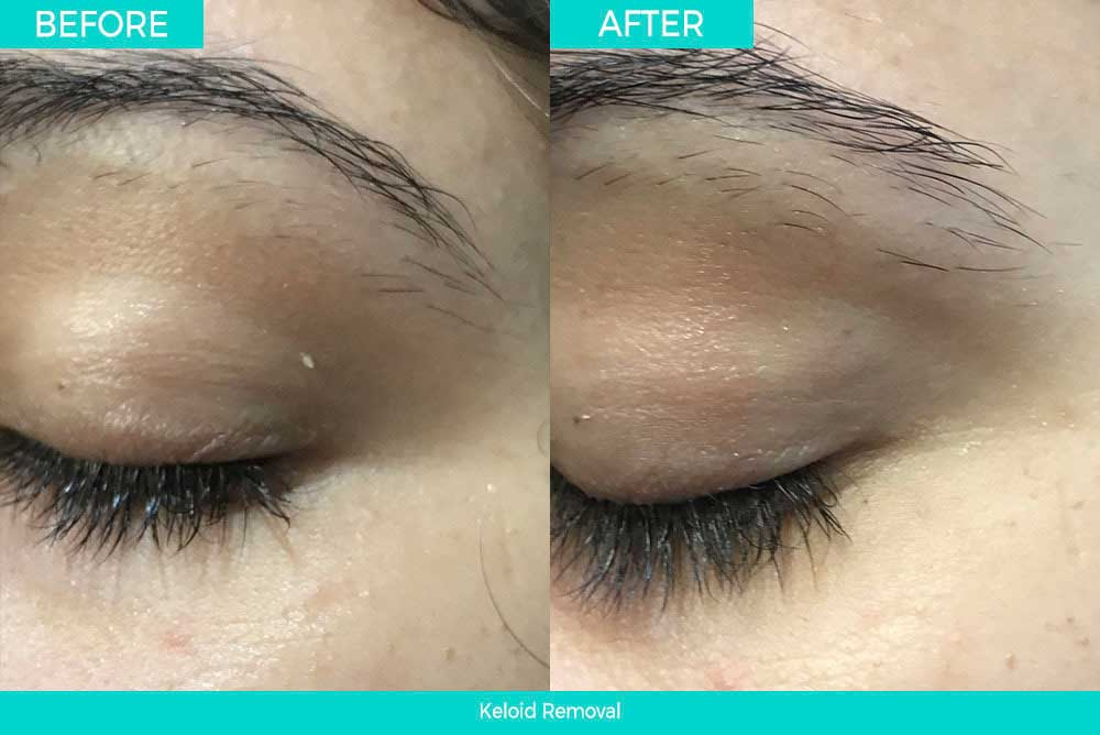 Before & After Skin Tag Removal
