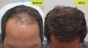 Hair-Transplant-Miami-BA4