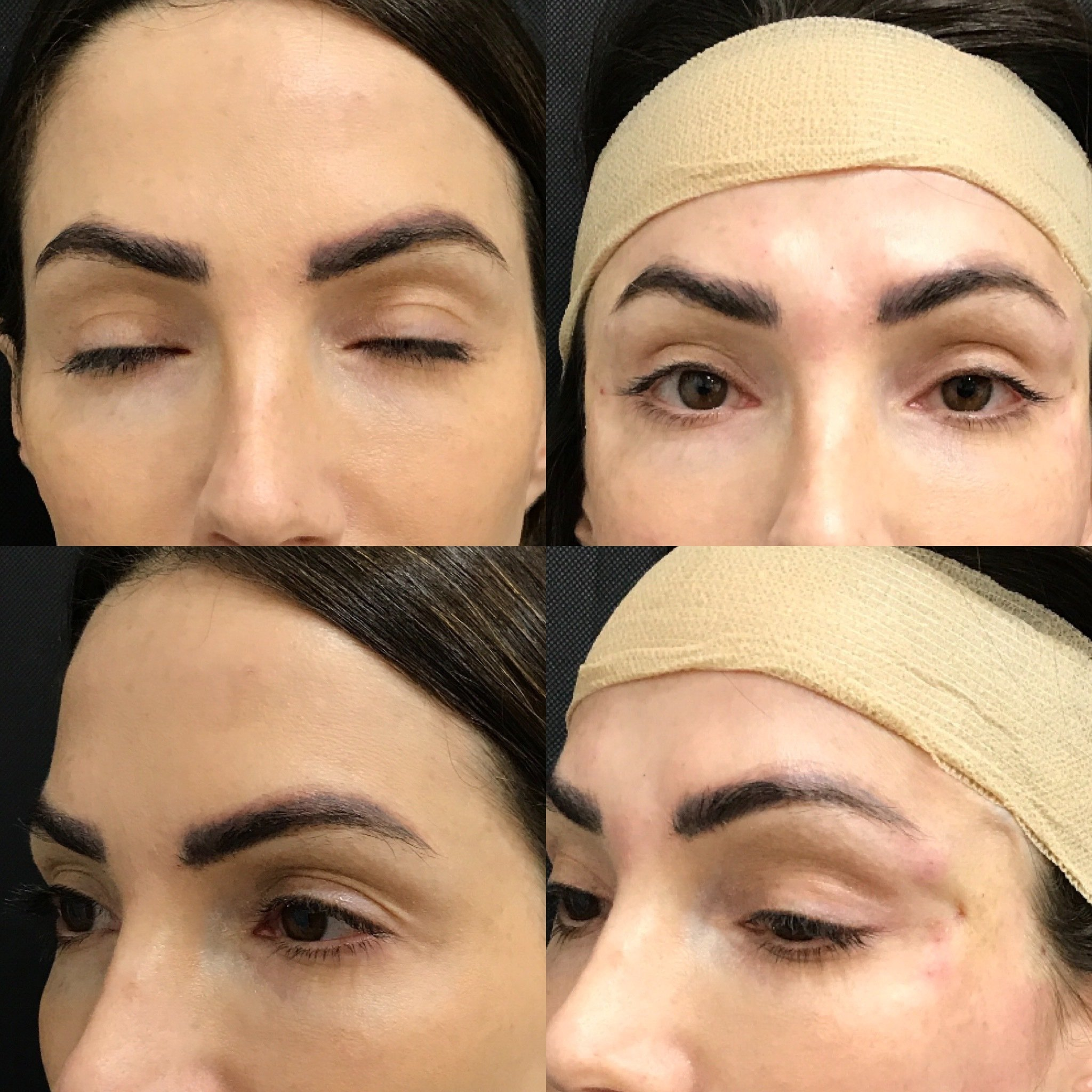 Foxy Eyes Before and After Multiple Angles