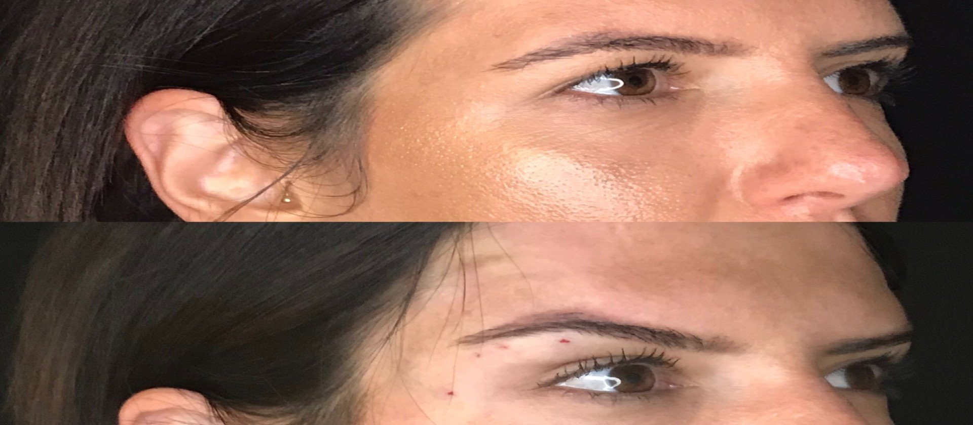 Foxy Eyes Before and After