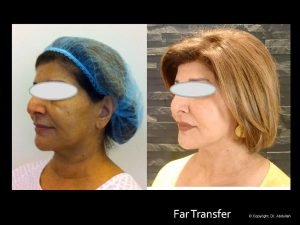 Facial Surgery Before and After Photos