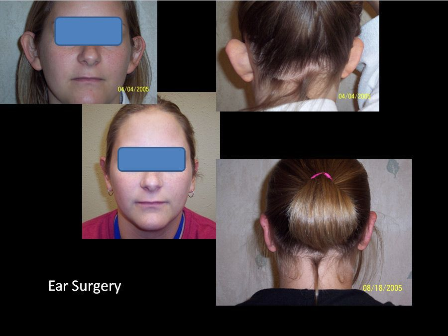 Facial Surgery Before and After