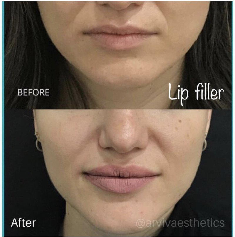 Before and after lip fillers additional image