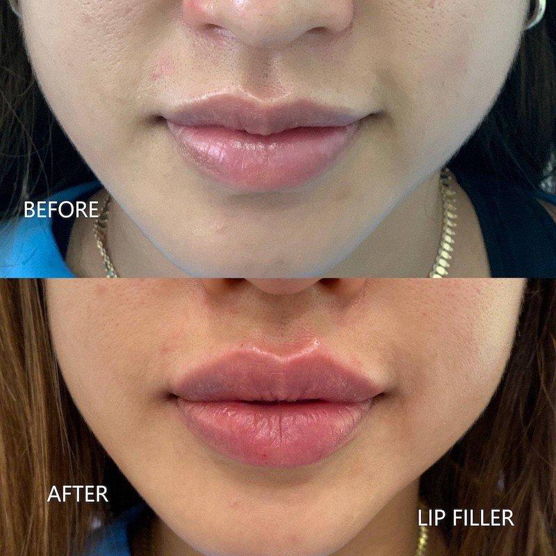 lip filer