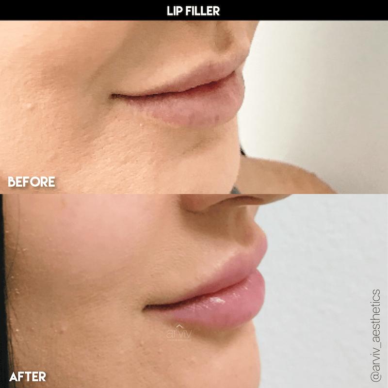 lip filler4