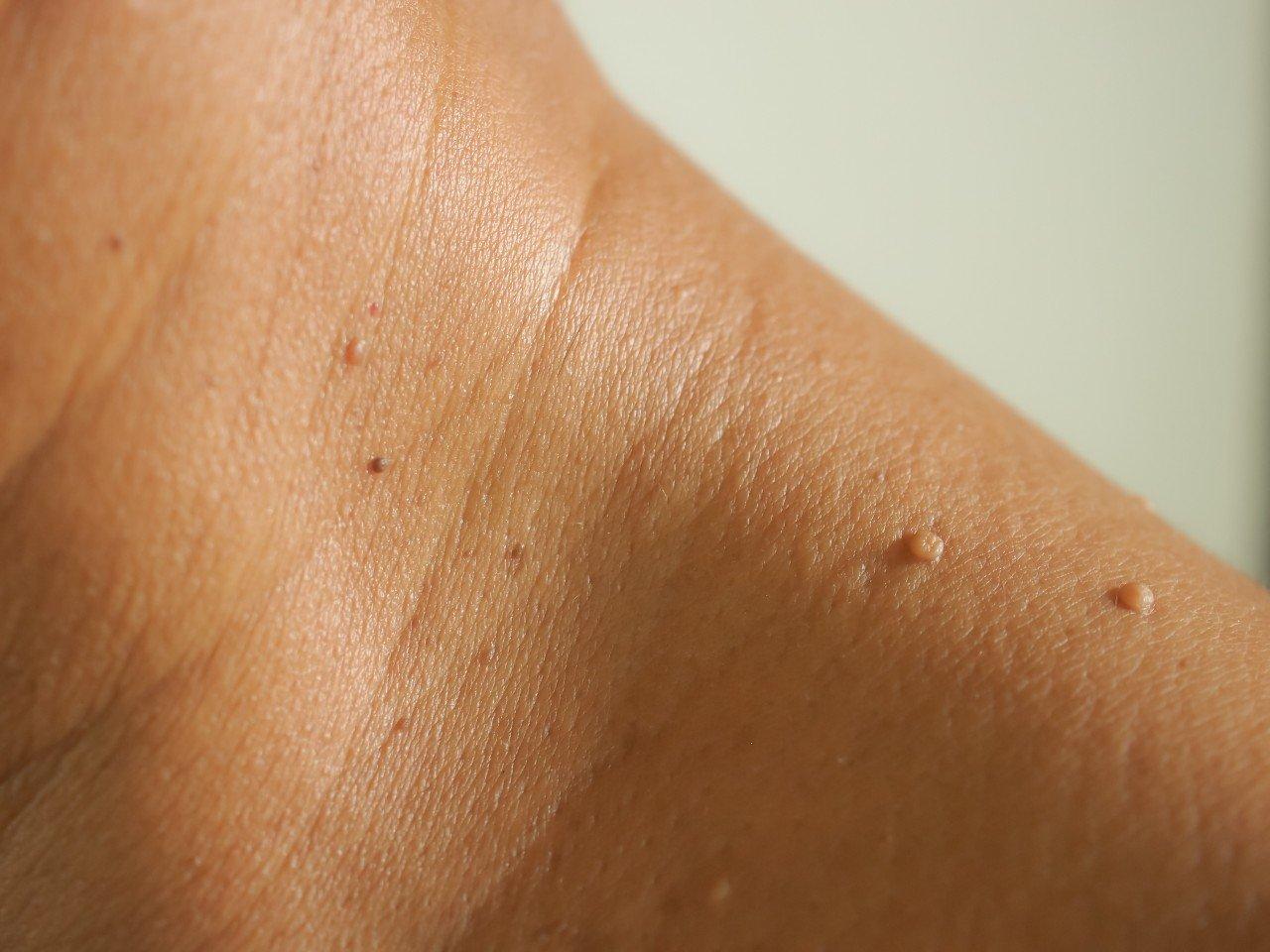 skin-tag-removal-miami (1)