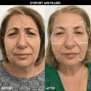 Botox & Dysport