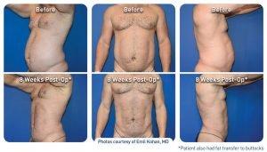 renuvion-before-after-abdominal-case-7_kohan_photos_72dpi