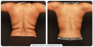 renuvion-before-after-back-axilla-and-flanks-case1-photos_72dpi