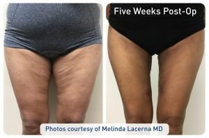 renuvion_before-after_patient4-thighs1_72dpi