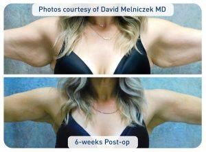 renuvion_before-after_patient5-arms_72dpi